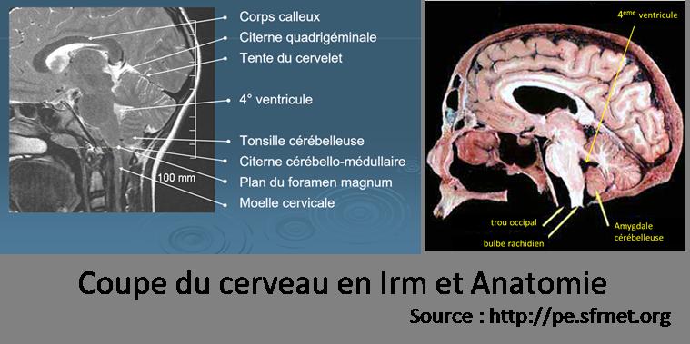 Coupe cerveau, malformation de Chiari, association APAISER