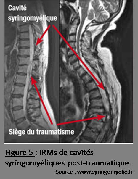 IRMs syringomyélie post-trauma