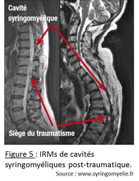 IRMs syringo post-trauma