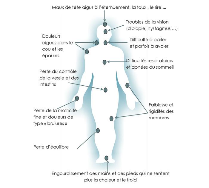 Les symptômes du Chiari (source @ Apaiser 2017)