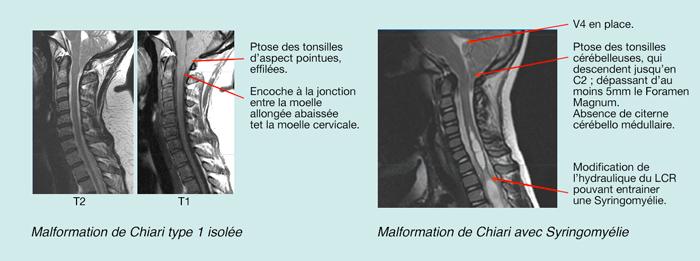 Différence avec ou sans syringomyelie