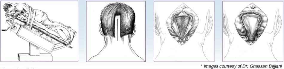 Chirurgie, APAISER, Association Pour Aider, Informer, Soutenir Études et Recherches pour la Syringomyélie & le Chiari