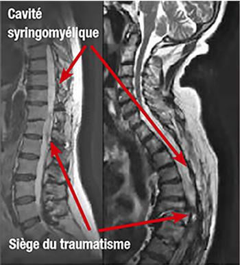 Figure 5 : IRMs de cavités syringomyéliques post-traumatiques. (source @ www.syringomyelie.fr)