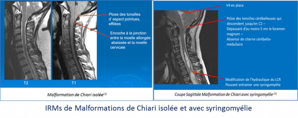 IRMS_Chiari_isolé