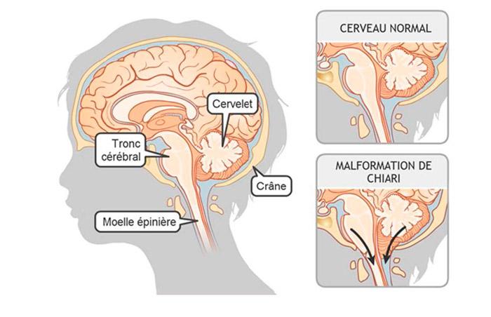 Une malformation de Chiari se produit lorsque le tronc cérébral est situé trop bas dans le crâne de votre enfant ou dans la partie supérieure de la colonne (cou). Li se peut que le tronc cérébral soit comprimé ou écrasé, et qu'il ne fonctionne donc pas adéquatement. (source @ www.syringomyelie.fr)