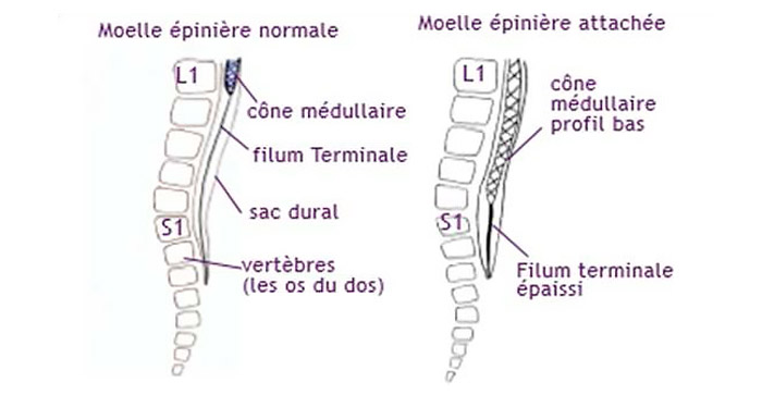 Moelle épinière attachée basse (source @ http://www.cheo.on.ca)