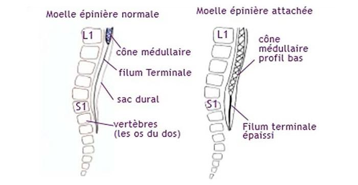 Moelle épinière attachée basse (source @ http://www.cheo.on.ca)
