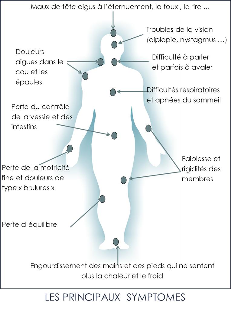 Principaux_symptomes_Chiari