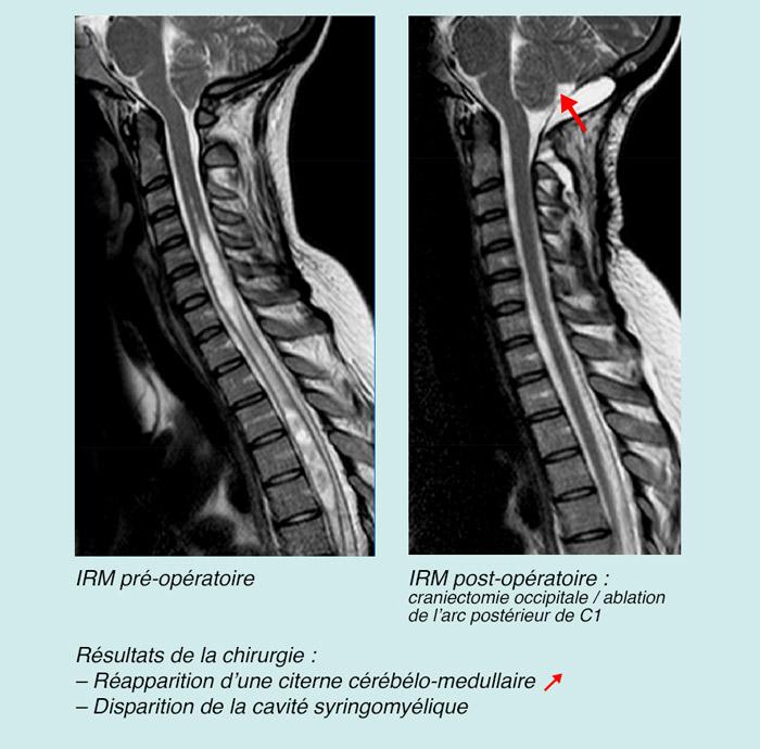 IRM pré-opératoire / IRM post-opératoire