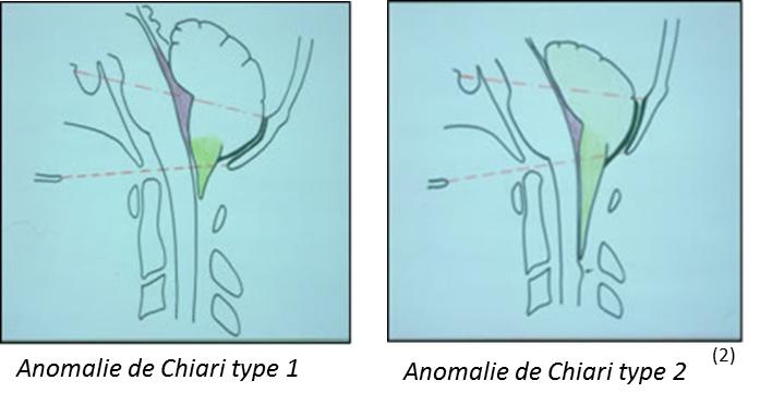(Sources : Orphanet, Documents ASBH, Dr J. GUARNIERI, CHU Valenciennes)