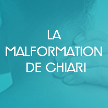 La malformation de Chiari, association Apaiser