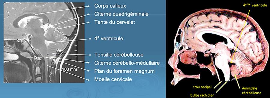 Coupe du cerveau en Irm & anatomie (source @ http://pe.sfrnet.org)