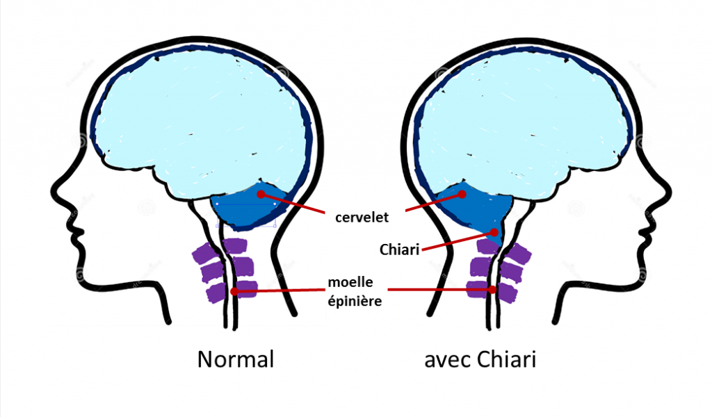Normal_Avec_chiari