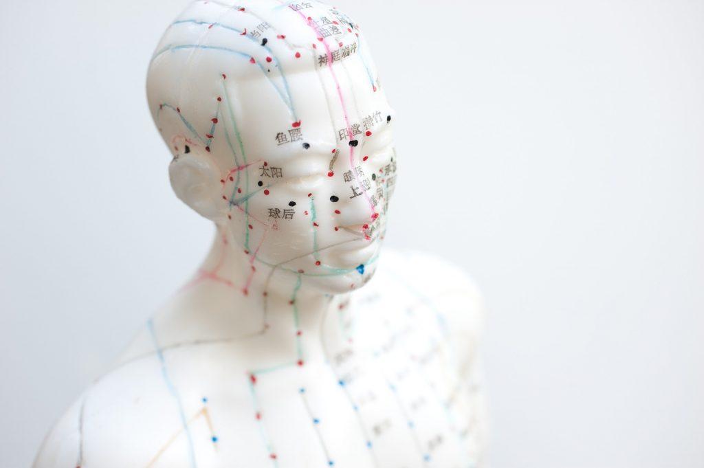 Acupuncture, APAISER, Association Pour Aider, Informer, Soutenir Études et Recherches pour la Syringomyélie & le Chiari
